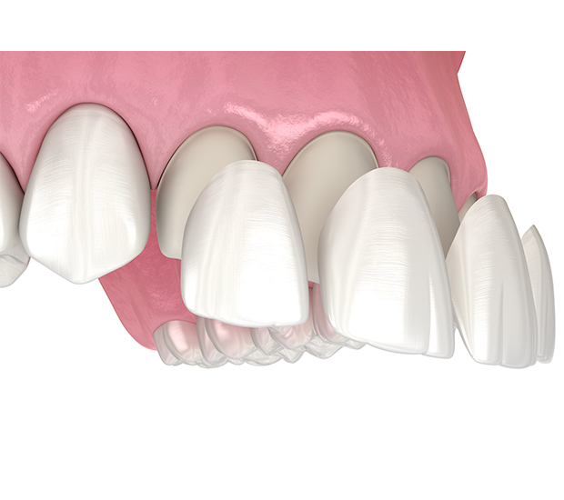 Tucson Dental Veneers and Dental Laminates
